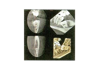 当院では尼崎のより多くの人へ予防の知識を提供し、虫歯や歯周病にならない環境を作るお手伝いをしています。