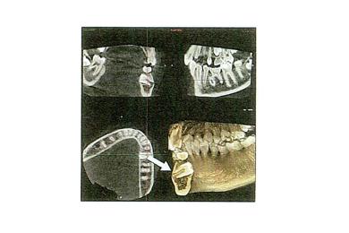 当院では1本でも多くの歯を健康な状態で長く使っていただけるように歯周病の治療に力を入れています。