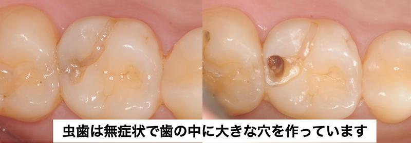 虫歯は無症状で歯の中に大きな穴を作っています