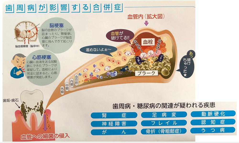 歯周病が影響する合併症