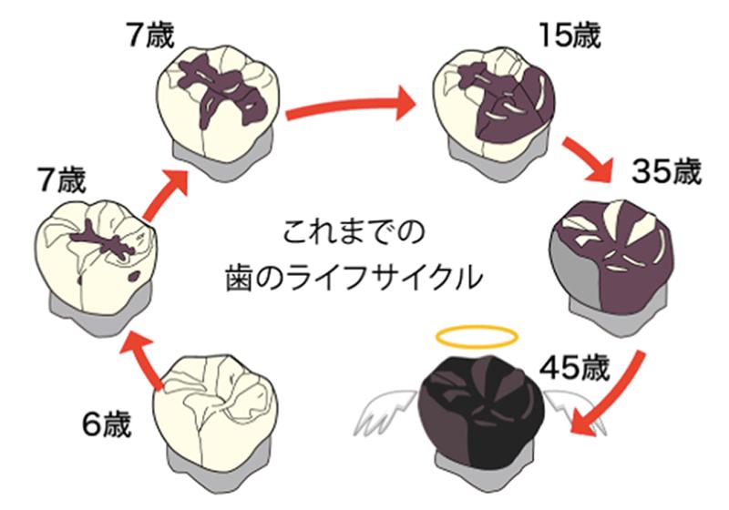 これまでの歯のライフサイクル