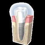 implant004